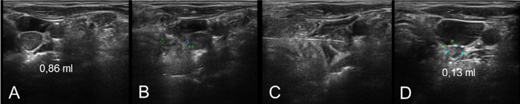 Behandlung einer Lymphknotenmetastase